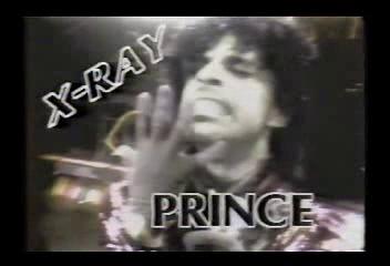 X-ray Segment - Prince
